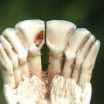 Estimating Deer Age with Cementum Annuli