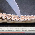 VIDEO: Jawbone Aging Part 2 – Tooth Wear